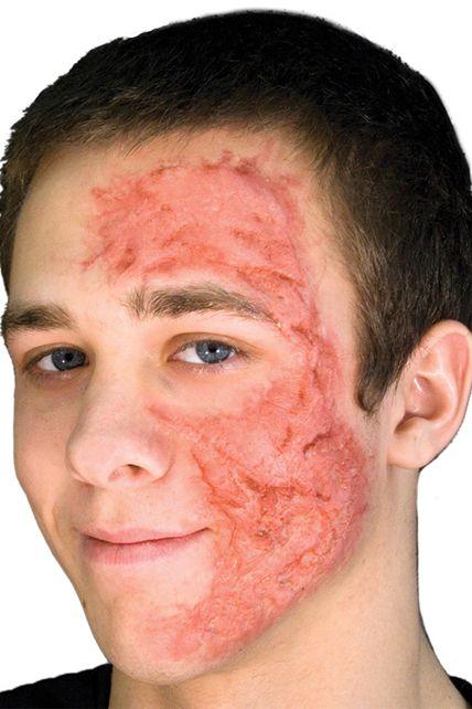Plaie brulure visage en latex maquillage proth se effets sp ciaux le - Brulure coup de soleil visage ...